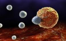 Mọi người đều có tế bào ung thư, nhưng không phải ai cũng bị ung thư: Mấu chốt là đây!