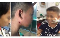 """3 trẻ nhỏ xứ Nghệ bị """"vi khuẩn ăn thịt người"""" tấn công tuyến nước bọt mang tai"""