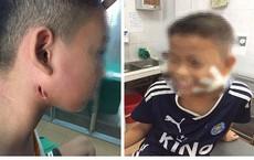 Phát hiện thêm một trẻ nhỏ mắc bệnh Whitmore ở Nghệ An