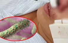 """BS Trương Hữu Khanh: Không cần hoảng loạn vì thứ vi khuẩn đang được cho là """"ăn thịt người"""""""