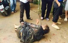 Ngăn cản các đối tượng trộm chó, 2 vợ chồng bị chém trọng thương ở Hà Nội