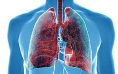Bị ung thư phổi đừng dễ dàng buông tay: Hãy bắt đầu với việc ăn uống để kéo dài sự sống