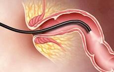 Bác sĩ khuyến cáo: Những dấu hiệu cảnh báo có thể là ung thư, nên chú ý đi khám sớm