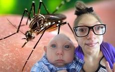 Thông tin mới nhất vụ nam thanh niên Đà Nẵng nhiễm virus gây bệnh đầu nhỏ