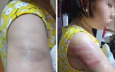 Viết bài chậm, học sinh lớp 4 bị cô giáo đánh bầm tím tay
