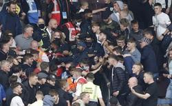 CĐV Arsenal đổ máu sau trận đấu với Burnley