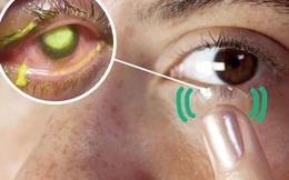 Nghiên cứu mới: Chỉ cần làm việc này có thể giúp mắt sáng hơn, dân văn phòng nên thử