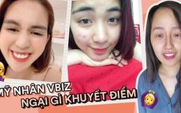 Mỹ nhân Vbiz tự 'bóc trần' khuyết điểm: Hoà Minzy gây sốc với mặt mụn chi chít, Mai Phương Thuý như người khác với 0% make up