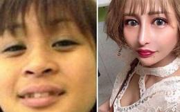 Bị chế giễu 'xấu như khỉ đột', cô gái cắn răng chịu đựng hơn 100 ca phẫu thuật trong 10 năm để trở thành tiếp viên nổi tiếng nhất Nhật Bản