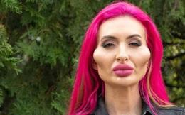 """Cô người mẫu thực hiện vô số lần chỉnh sửa, tiêm filler trong suốt 4 năm để có """"đôi má lớn nhất thế giới"""" bây giờ ra sao?"""