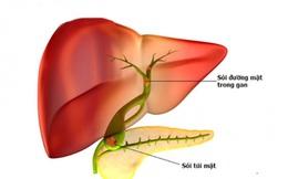 Cảnh giác sỏi đường mật trong gan