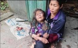 Nam thanh niên cướp tiền, đánh đập dã man cụ bà 90 tuổi rồi châm lửa đốt