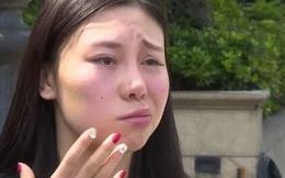 """""""Tôi chỉ muốn chết thôi"""": Cô gái trẻ đau khổ khi miệng méo xệch, đơ nửa mặt chỉ vì hình thức làm đẹp nhiều chị em đang sử dụng"""