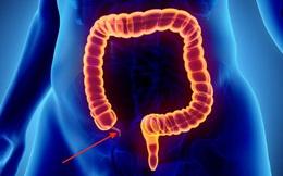 """Đau bụng kèm sốt, chán ăn: Cẩn thận với căn bệnh có """"thời gian vàng"""" cấp cứu chỉ 6 giờ, để lâu nhiều biến chứng"""