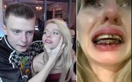 Mẫu nữ bị đánh đập dã man đến gãy cả niềng răng khi đang livestream trên kênh YouTube có gần 700 nghìn subscriber