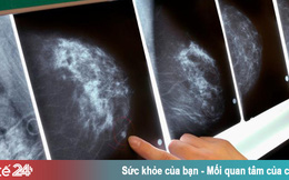 Hai người trong một gia đình kịp thời phát hiện ung thư vú nhờ... nuôi chó
