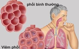 Làm gì để phòng ngừa viêm phổi mùa đông?