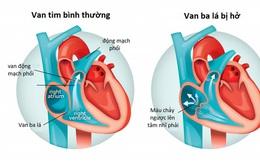 Hở van tim có dễ phát hiện?