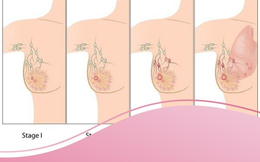 Hơn 15.000 ca ung thư vú được phát hiện mới mỗi năm tại Việt Nam: Những người sau có nguy cơ cao mắc bệnh
