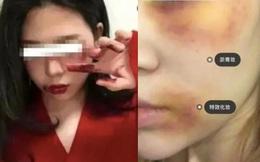 """Rộ mốt makeup """"bạo hành gia đình"""" dịp Halloween: Khi nỗi đau bị mỹ miều hóa và đem đổi lấy sự""""cool ngầu"""" trên MXH"""