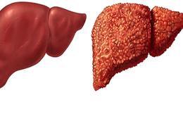 3 điều nên làm ngay để ngăn chặn xơ gan: Người có vấn đề về gan nên lưu ý sớm