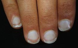 9 dấu hiệu cảnh báo bệnh tật trên móng tay: Dấu hiệu bệnh về gan rất dễ nhận biết