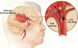 Căn bệnh gây chết não chỉ trong thời gian ngắn: Người hút thuốc lá cần bỏ ngay vì có nguy cơ cao