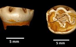Chiếc răng lạ tiết lộ đứa trẻ y hệt nhưng không phải loài người chúng ta