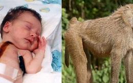 Bé gái hơn 10 ngày tuổi đã mang trong cơ thể trái tim của khỉ sau ca phẫu thuật cấy ghép phi thường khiến giới y khoa ngỡ ngàng