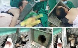 Rửa máy xay thịt, thanh niên 27 tuổi bị máy nghiền nát tay ở Sài Gòn