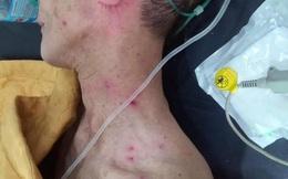 Nghệ An: Cứu sống 2 bố con bị ong rừng tấn công