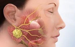 Phân biệt bệnh quai bị và viêm tuyến nước bọt