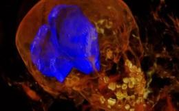Ảnh chụp X-quang hé lộ bí ẩn về xác ướp bé gái 2000 năm tuổi với 36 cái 'đinh ghim'