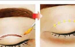 Hệ lụy khôn lường từ làm đẹp cho mắt