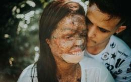 Cô gái có làn da sần sùi như vỏ cây cưới chồng trẻ đẹp