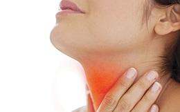 Khi viêm họng,  không nên  tự ý dùng kháng sinh