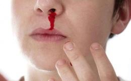 Chảy máu cam có phải do thiếu chất?