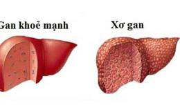Bệnh xơ gan cần kiêng gì?