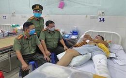 Một tổ trưởng tổ CSGT ở Đồng Nai bị tông gãy tay, chân