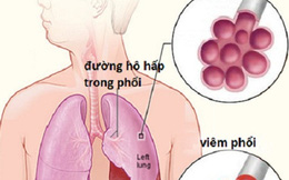 6 bệnh viêm phổi - phế quản thường gặp