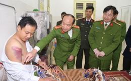 Hai kẻ trộm chó chém Trưởng công an xã ở Bắc Ninh