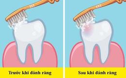 """Các nha sĩ trả lời câu hỏi """"dễ mà khó"""": Nên đánh răng trước hay sau bữa ăn sáng?"""