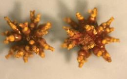 Bị sỏi thận nhiều năm, bệnh nhân để sỏi kết thành san hô bao quanh thận