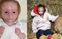 Bé gái chào đời chỉ nặng 30g, bác sĩ tuyên bố chỉ sống được 1 năm nhưng em đã chứng minh cho thế giới thấy phép màu là có thật!