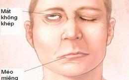 Tắm mùa đông, bệnh nhân trẻ bị liệt nửa mặt: Bác sĩ cảnh báo thêm căn bệnh do nhiễm lạnh đột ngột