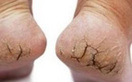 Vì sao thời điểm cuối năm làn da bị 'tàn phá' nhiều nhất?