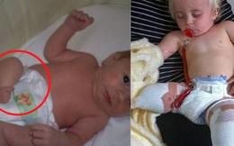 Bé gái sinh ra với đôi chân chỉ dài 5cm, 18 tháng tuổi đã phải cưa cụt chân để giữ mạng sống 10 năm trước gây ngỡ ngàng với cuộc sống hiện tại