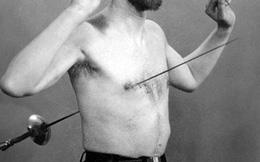 Tấm X-quang và sự thật về người 500 lần kiếm xuyên ngực không chết