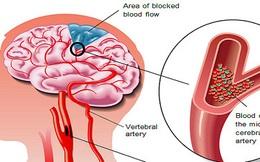 """Căn bệnh """"sát thủ"""" có thể gây suy tim, đột quỵ, suy thận: Nguy hiểm nhưng khó phát hiện"""