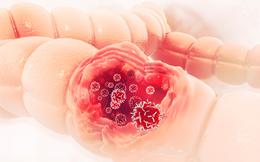 PCT Hội Ung thư: Muốn phát hiện sớm ung thư đại trực tràng phải làm việc quan trọng này